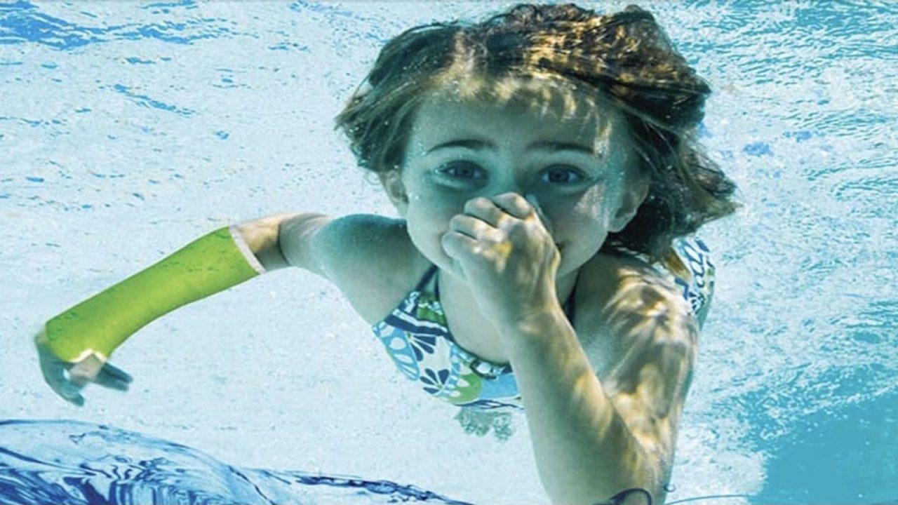Κάταγμα το καλοκαίρι; Ο αδιάβροχος γύψος AquaCast Liner είναι η λύση