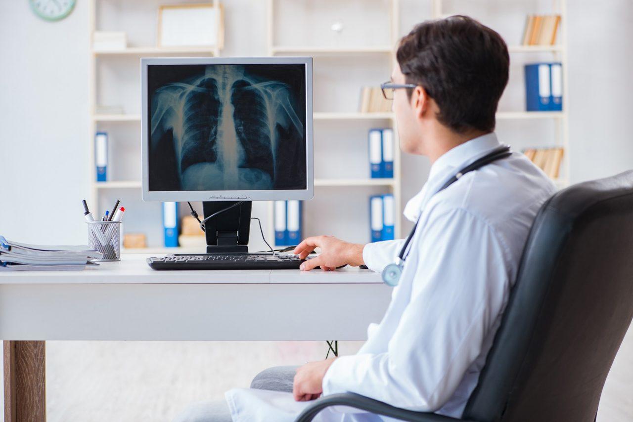 Εγκρίθηκε νέα συνδυαστική θεραπεία για τον καρκίνο του πνεύμονα