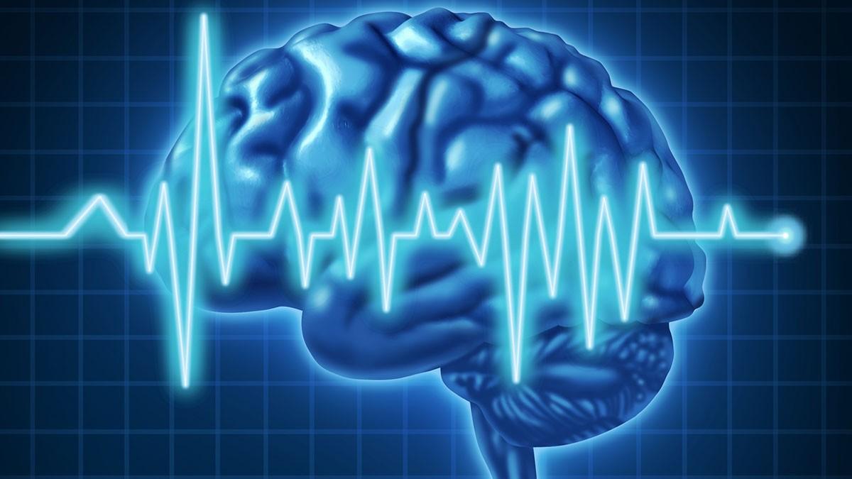Εγκεφαλικό επεισόδιο: Οι τρεις ερωτήσεις που σώζουν ζωές