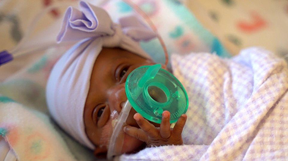 Θαύμα: Κοριτσάκι γεννήθηκε 245 γραμμάρια αλλά κέρδισε τη μάχη για τη ζωή