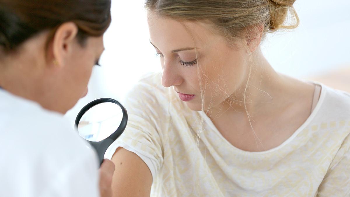 Μελάνωμα: Τα πασίγνωστα φάρμακα που το αντιμετωπίζουν – Τι έδειξε νέα έρευνα