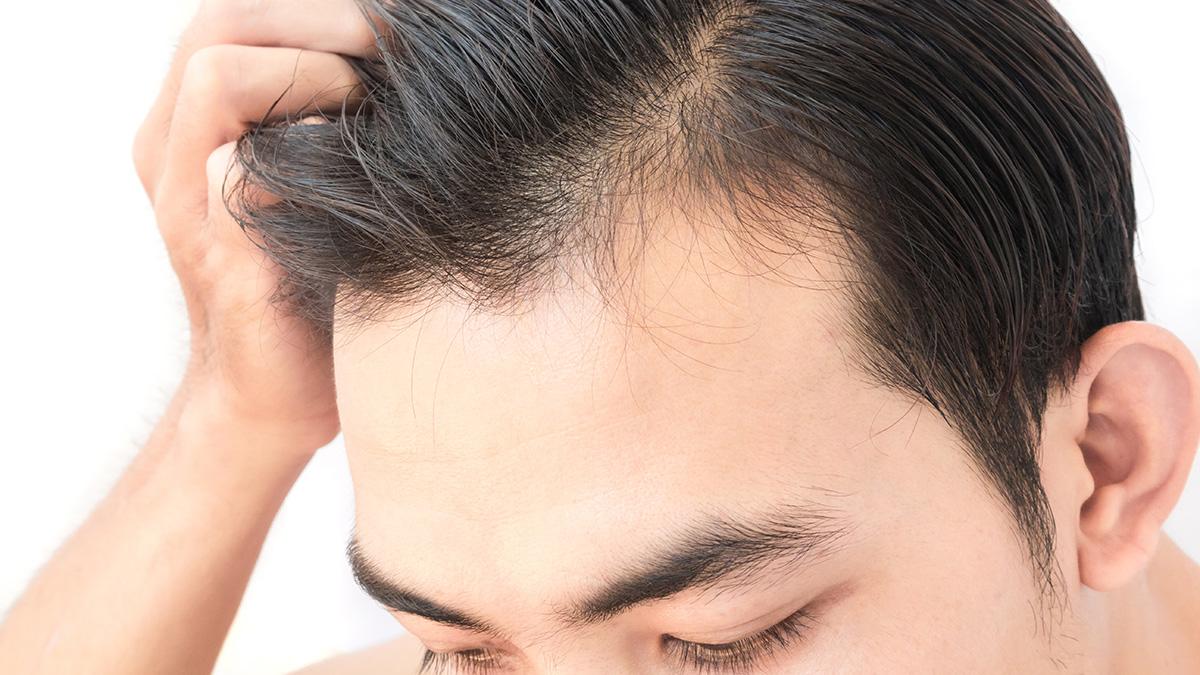 Τριχόπτωση: Η βιταμίνη που δυναμώνει τα μαλλιά – Οι τροφές που την περιέχουν