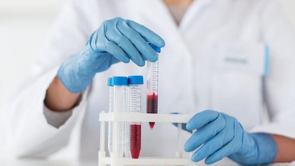 Κορωνοϊός: Η εξέταση που αποκαλύπτει ποιοι ασθενείς θα νοσήσουν επτά φορές πιο σοβαρά