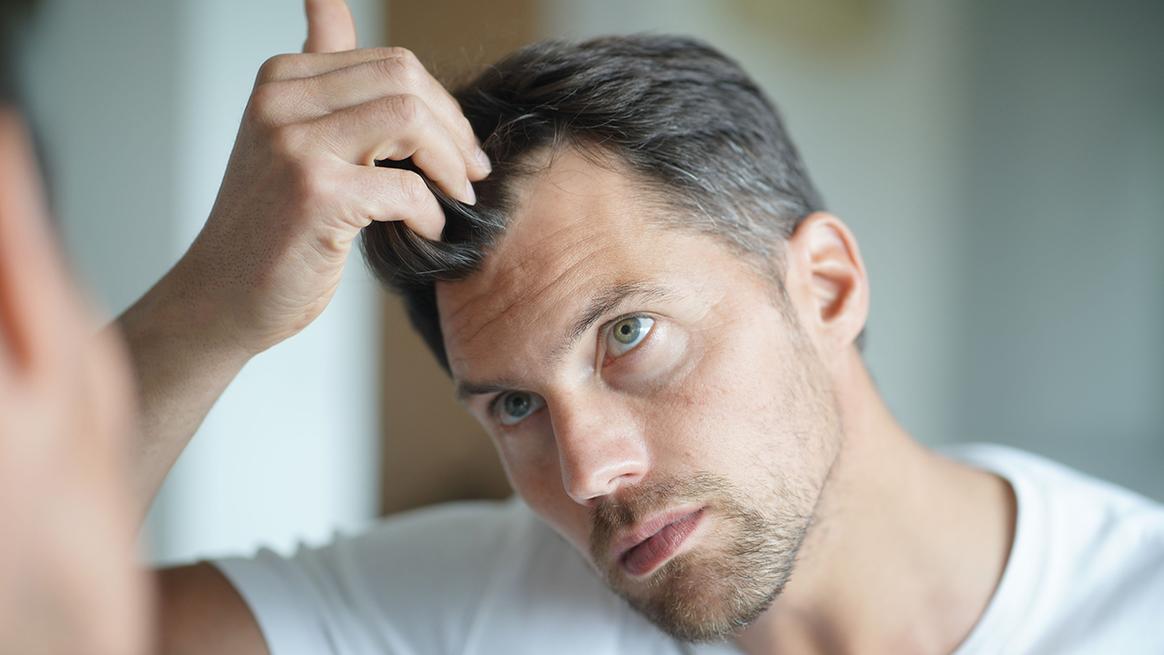 Μεταμόσχευση μαλλιών: Φυσικά αποτελέσματα από τη διεθνή κλινική BHR Clinic Athens
