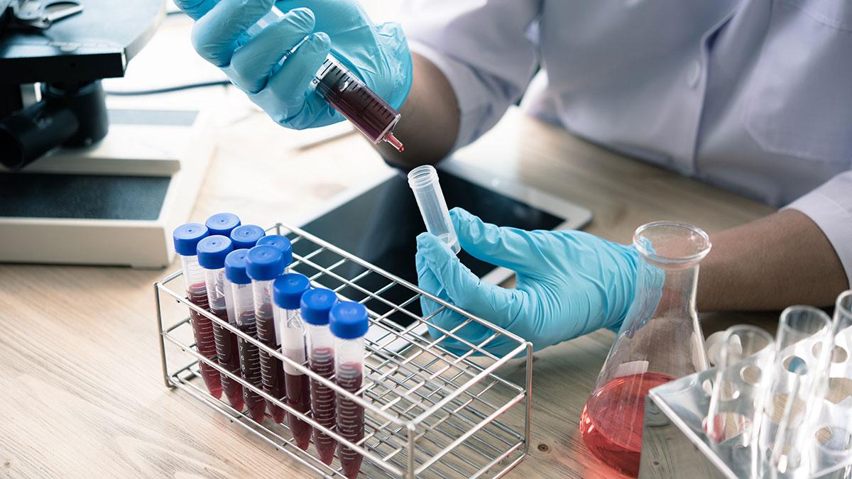 Κορωνοϊός – Θεραπεία με πλάσμα αίματος: Ποιοι ασθενείς είναι οι καλύτεροι υποψήφιοι δότες