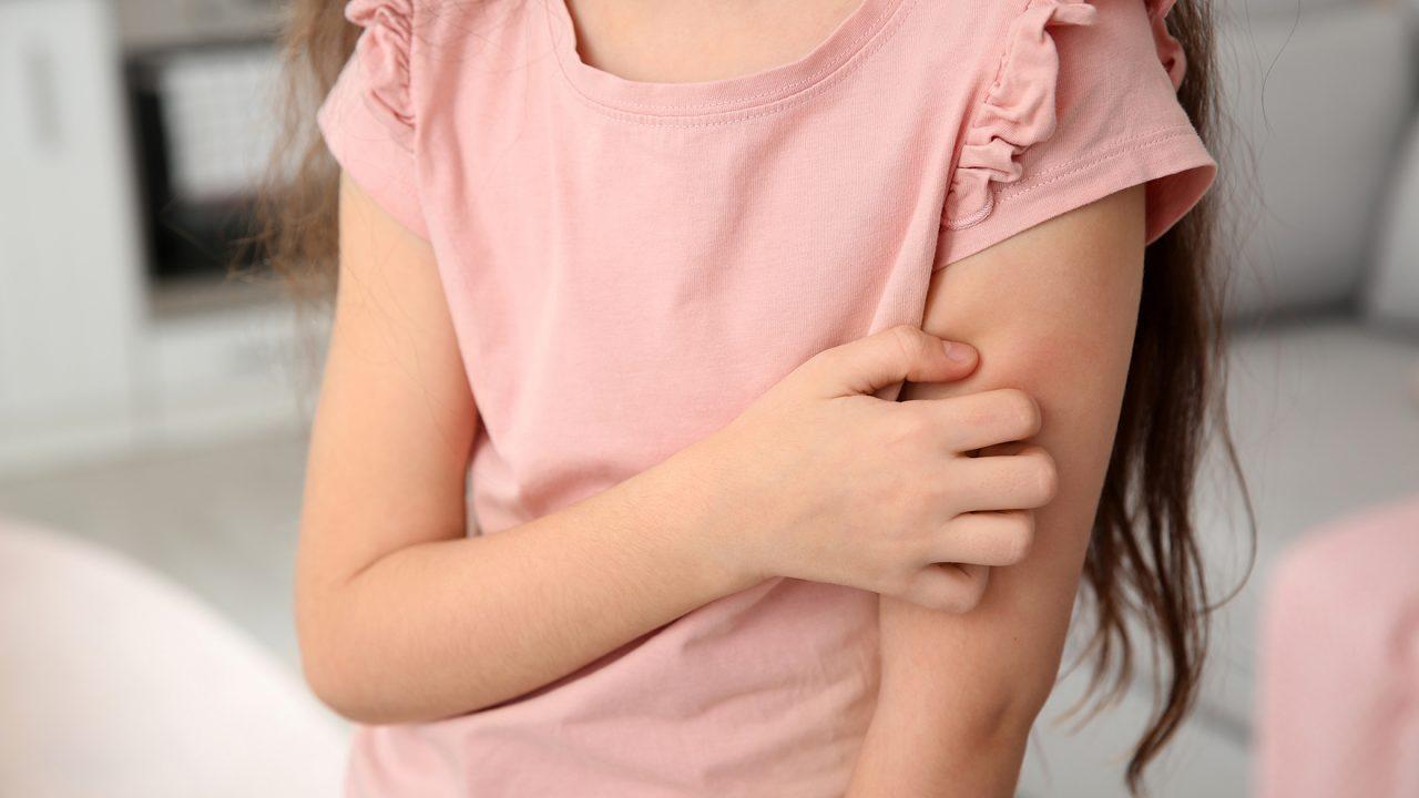 Έκζεμα: Η βιταμίνη που ανακουφίζει τα συμπτώματα