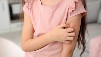 Κορωνοϊός: Τέσσερα δερματικά συμπτώματα που πρέπει να μας ανησυχήσουν
