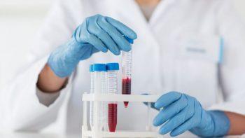 Κορωνοϊός – Ομάδα αίματος: Τελικά πόσο επηρεάζει τη βαρύτητα της νόσου