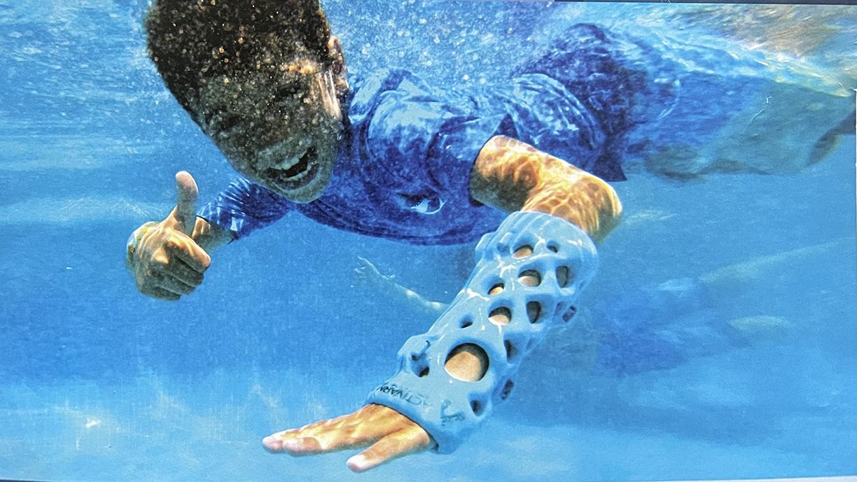 Ατύχημα λίγο πριν τις διακοπές; Πρωτοποριακός ορθοπεδικός νάρθηκας βάζει τέλος στον γύψο